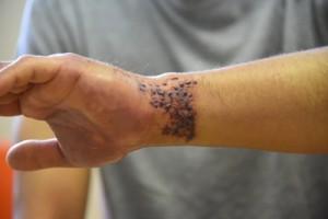 ウンバチイソギンチャクに刺されて腫れ上がった男性の左腕=26日、奄美市名瀬